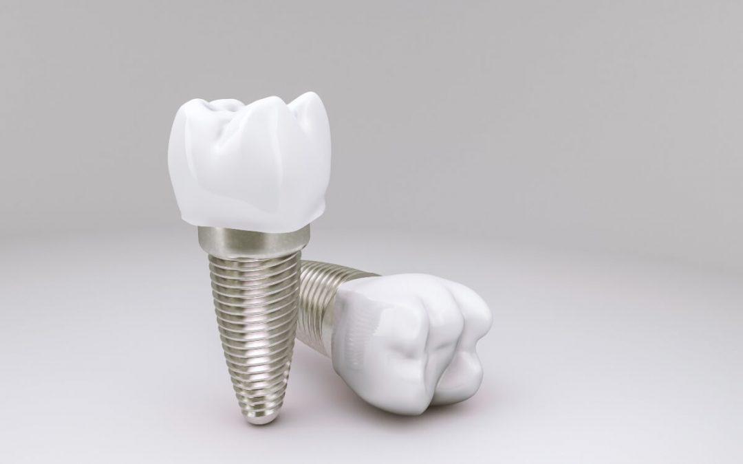 ¿Es posible poner implantes dentales sin hueso?